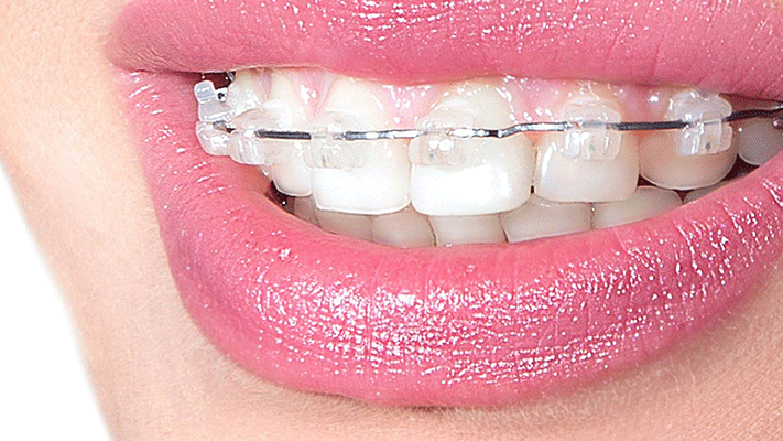 Orthodontic Treatment with Transparent Plaques