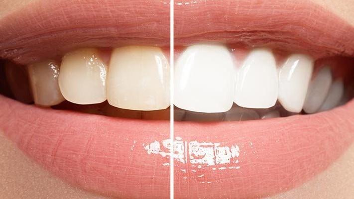 Teeth Whitening Dental Clinic in Istanbul Turkey