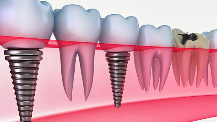implant treatment in turkey