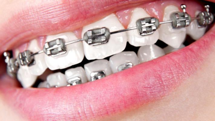 Orthodontic Treatment Braces Options