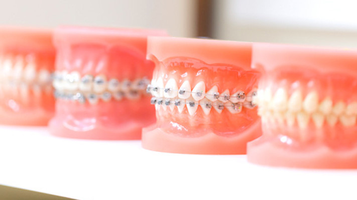Orthodontic Treatment in Turkey
