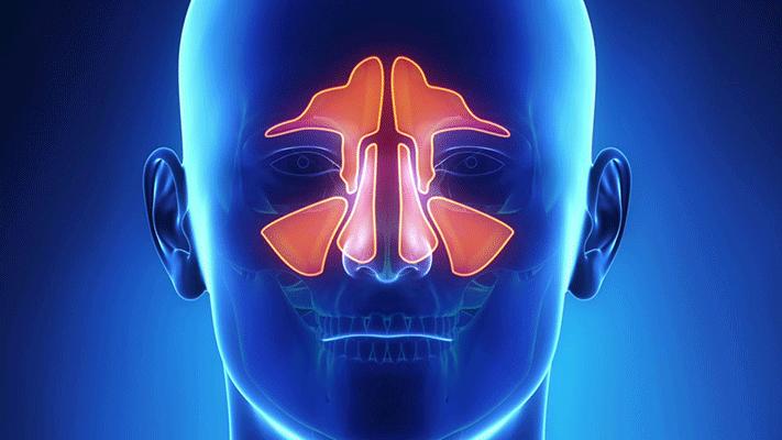 Sinus Lifting treatments Turkey